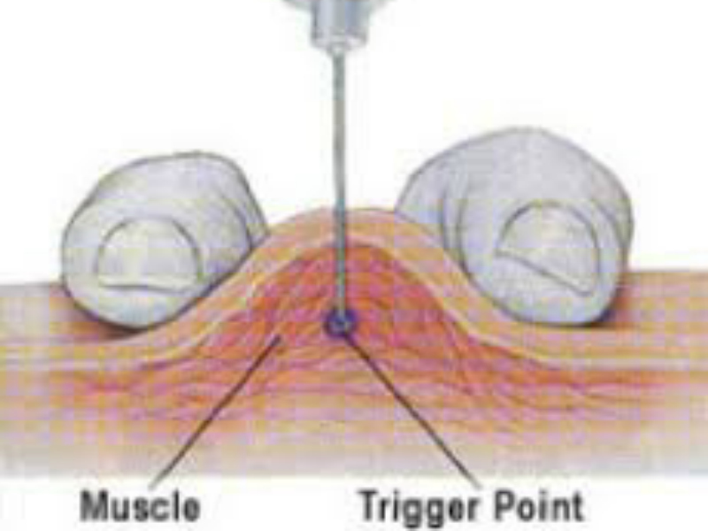 dry-needling-spier-fysiotherapie-zoetermeer