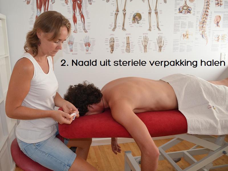 dry-needling-zoetermeer-fysiotherapie-2